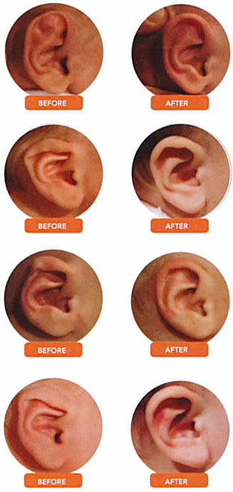 how to fix prominent ears at home